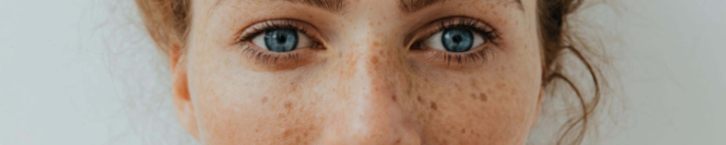 Heeft een vette huid ook hydratatie nodig?